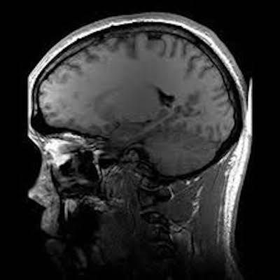 Brownfield Regional Medical Center now offers MRI services  Monday-Friday 8:00am-5:00pm
